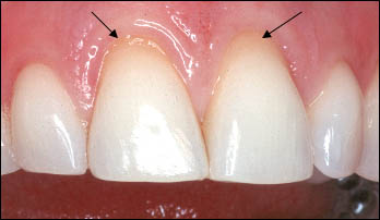 Exposed Roots on Central Incisors