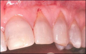 Recession on the lateral and cuspid tooth
