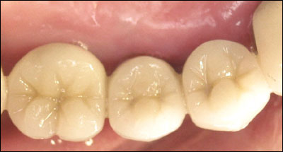 Implant supported teeth biting surfaces